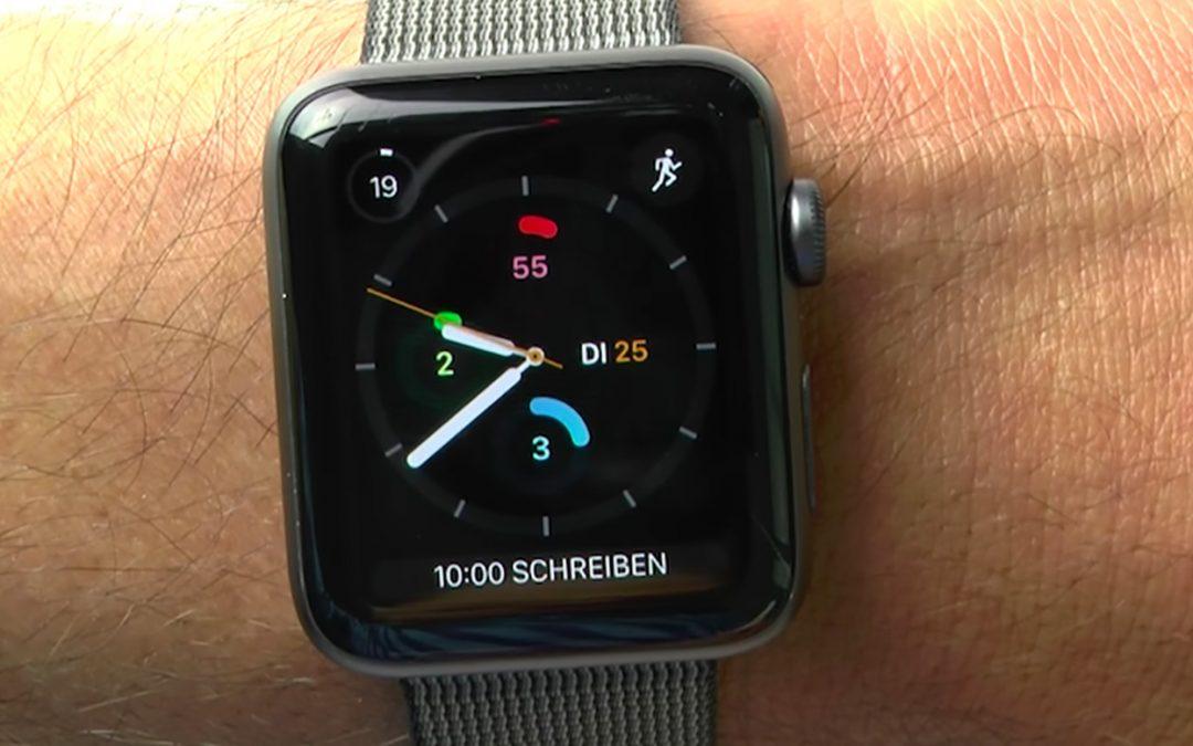 Todoist Aufgaben mit der Apple Watch erfassen